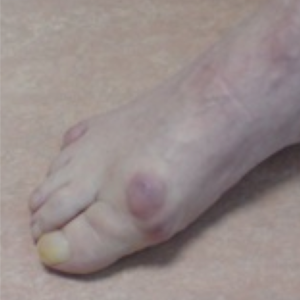 big toe arthritis hallux rigidus