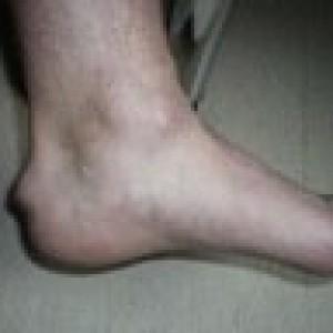 heel bump haglund deformity