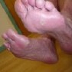 corns on feet metatarsalgia