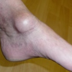 ganglion of the foot or ankle
