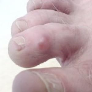 ganglion toe