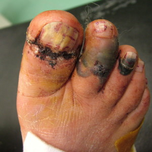 Forefoot Injuries