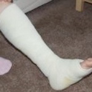 plaster cast flat foot surgery