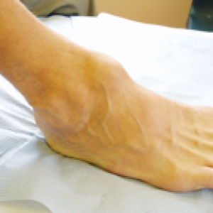 ankle swelling arthritis