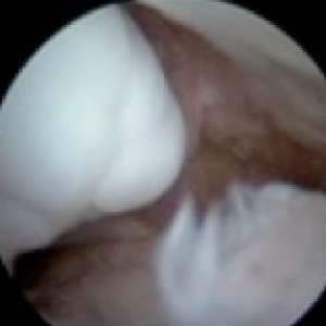 arthroscopy ankle impingement