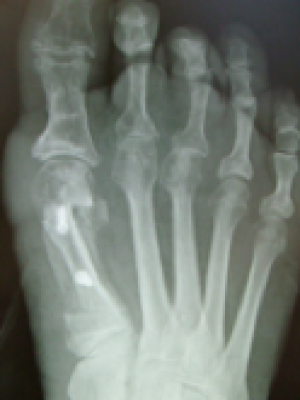 xray bunion after surgery