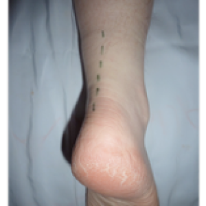 incision for achilles tendon surgery