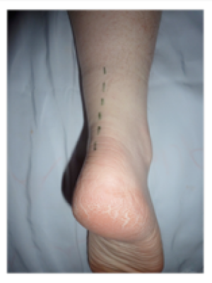 Incision for Achilles tendonitis clean up