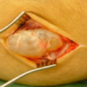 picture of ganglion surgery