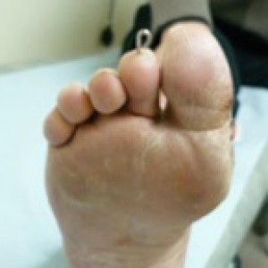 hammer toe surgery wire