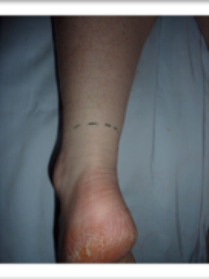 Incision for Achilles Tendon repair