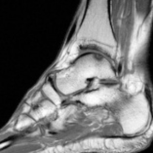 ankle instability pain osteochondral injury