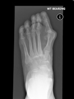 xray bunion x ray