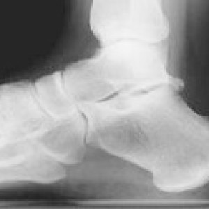 xray x ray of high arched foot