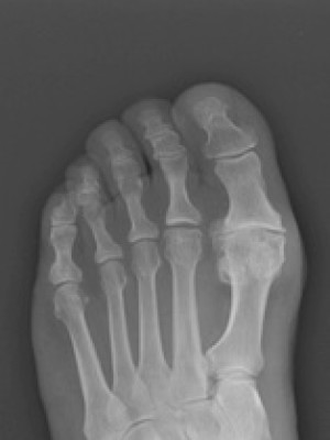 big toe arthritis x ray hallux rigidus xray