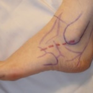 incision for ankle instability brostrum procedure
