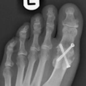 fusion surgery big toe arthritis hallux rigidus