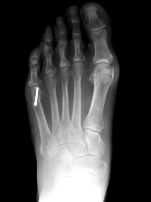 after taylor's bunion surgery
