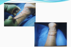 after achilles tendon achillon surgery