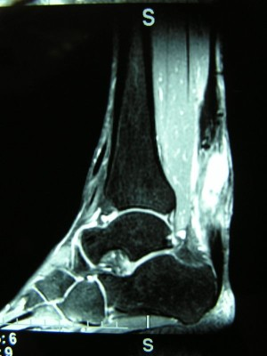 MRI scan ruptured achilles tendon