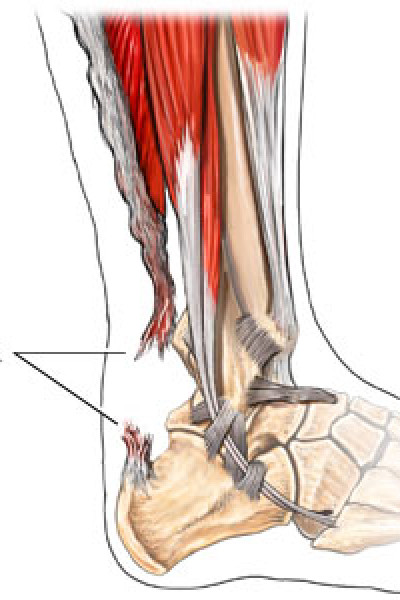 rupture achilles tendon