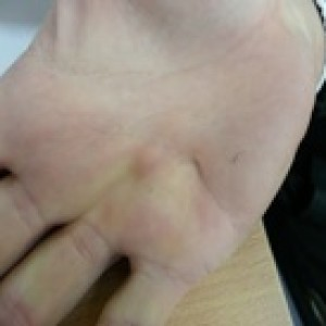fibroma in the hand dupuytren's disease