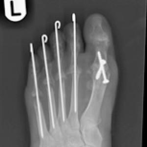 after rheumatoid foot surgery